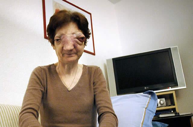 Chantal Sébire et le débat du droit à l'euthanasie