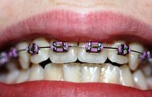 J'ai testé pour vous… le retour chez l'orthodontiste