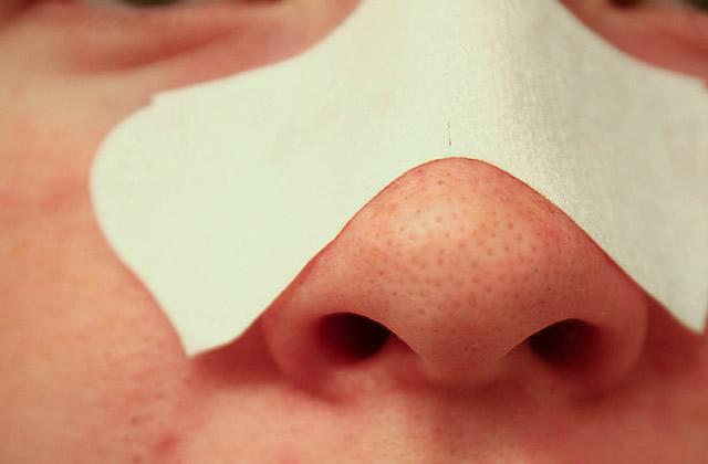 Comment enlever les points noirs, éviter les pores dilatés…