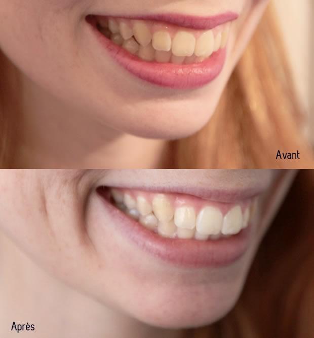 blanchiment des dents marseille prix
