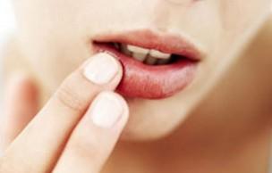 Lien permanent vers 4 baumes à lèvres au banc d'essai