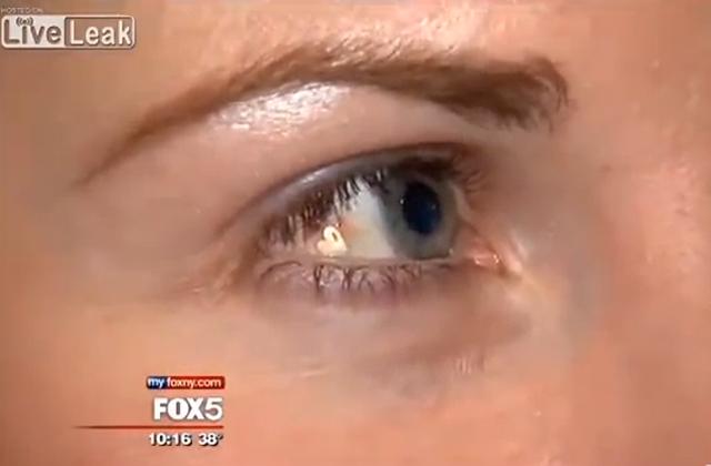 Le bijou implanté dans l'œil — WTF Beauté