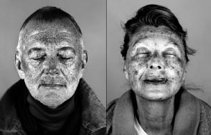 Lien permanent vers Ultraviolet Beauties : les dégâts du soleil révélés par une lampe UV