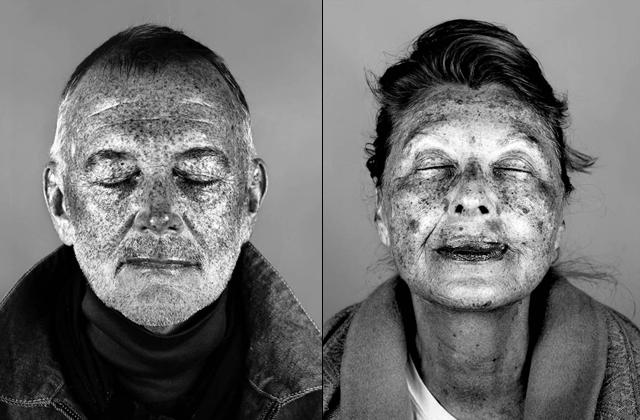 Ultraviolet Beauties : les dégâts du soleil révélés par une lampe UV