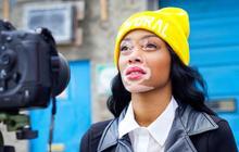 Chantelle Brown-Young, mannequin et malade du vitiligo