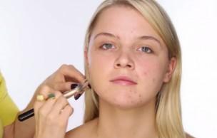 Lien permanent vers 3 tutos vidéo pour apprendre à camoufler son acné