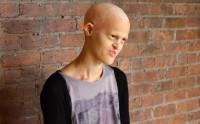 Melanie Gaydos, mannequin atteinte de dysplasie ectodermique