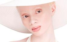 Thando Hopa, mannequin albinos, est la nouvelle égérie de Vichy