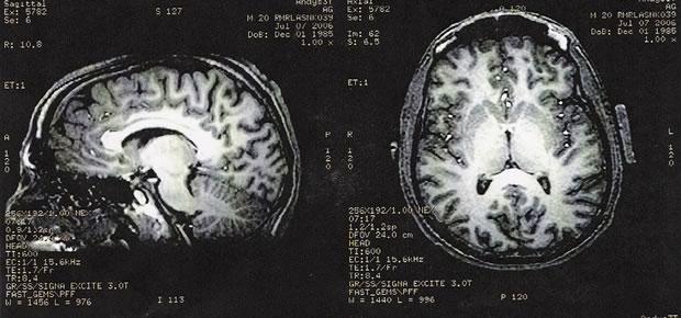 irm-cerveau