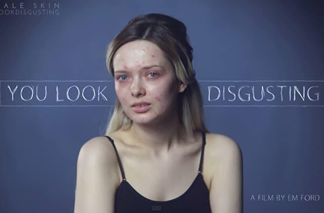 « You Look Disgusting », l'émouvante réponse d'une youtubeuse beauté raillée pour son acné