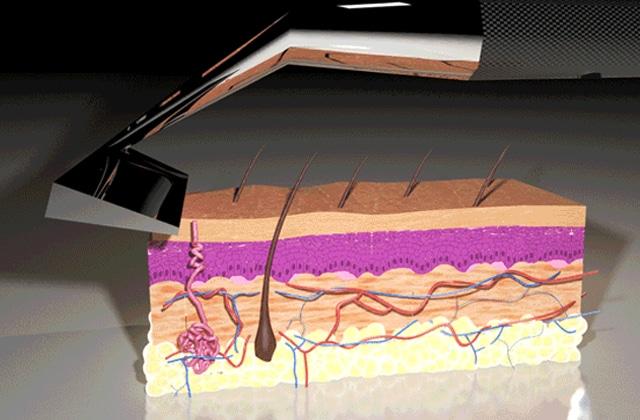Skarp, le rasoir laser du futur… ne convainc pas