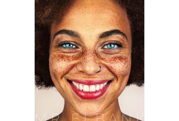 Les sangsues de la pigmentation sur la personne à