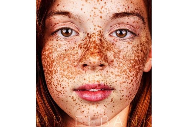 Les taches de pigment la prévention