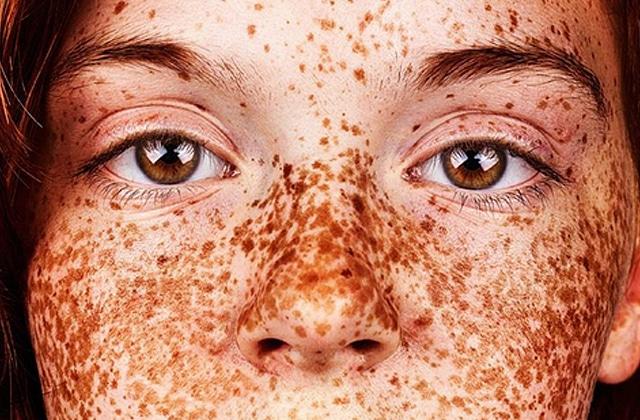 Les taches de rousseur mises à l'honneur dans #Freckles