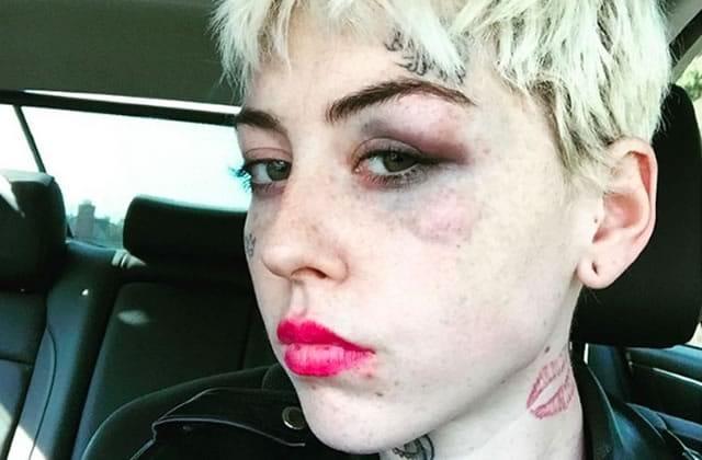 L'artiste qui avait dessiné Donald Trump avec un micro-pénis victime d'une agression à Los Angeles