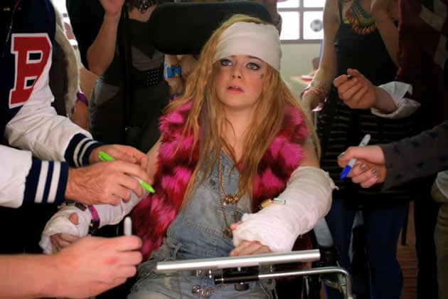 Emma Stone, I broke my arm, plâtre