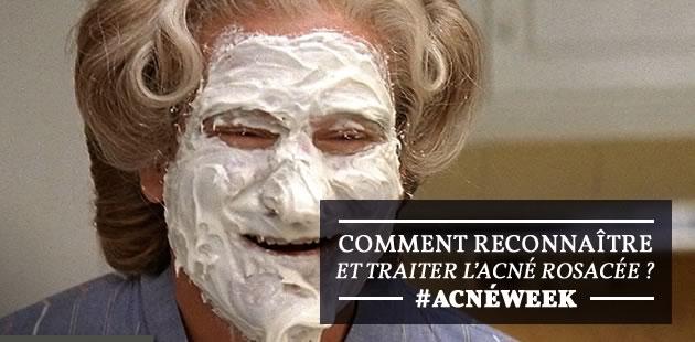 Comment reconnaître et traiter l'acné rosacée ? – #AcnéWeek