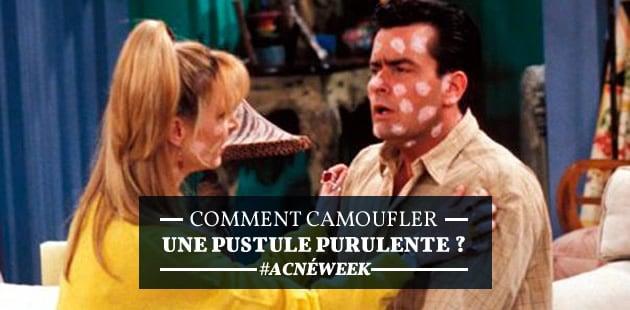 Comment camoufler une pustule purulente ? — #AcnéWeek