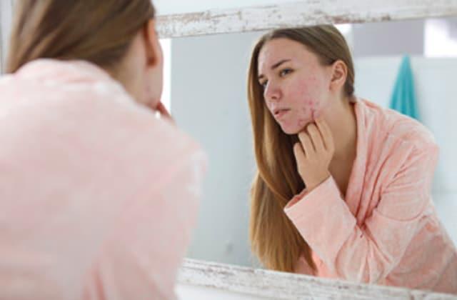 Comment aider ta peau pendant un traitement contre l'acné