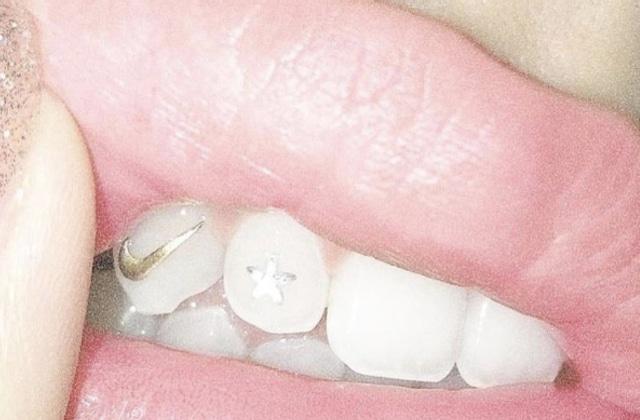 Les bijoux pour dents des années 2000 font leur grand retour!