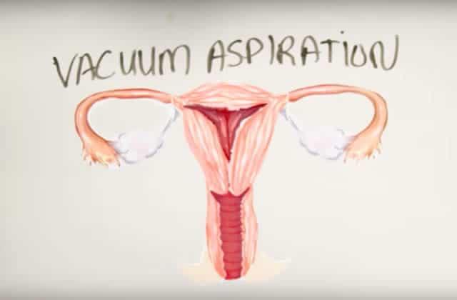 À quoi ressemble une IVG, loin des idées reçues et des mensonges de propagande