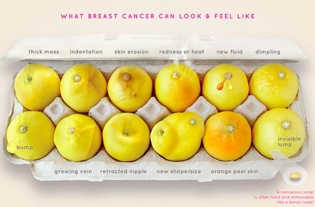 Comment des citrons ont sauvé la vie d'une femme touchée par le cancer du sein