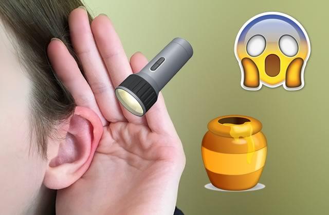 Les vidéos d'extraction de cire d'oreille, le paradis pour les fans de trucs dégueu