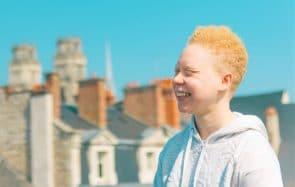 Je suis albinos et j'ai appris à vivre avec le regard des autres