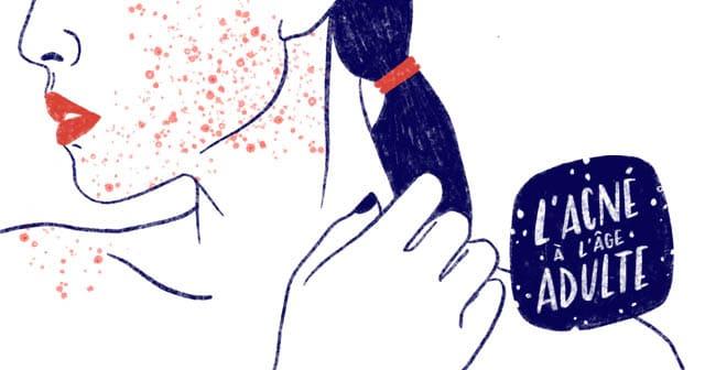J'ai de l'acné à l'âge adulte : comment la soigner ?