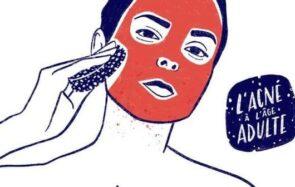 Quels gestes beauté pour lutter contre l'acné à l'âge adulte ?