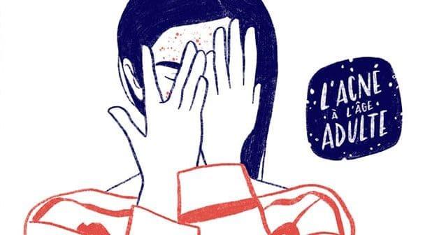 Quelles sont les conséquences psy de l'acné à l'âge adulte ?