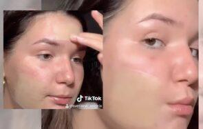 Les patchs hydrocolloïdes contre l'acné valent-ils vraiment toute cette hype?